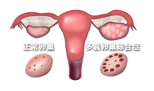 奥利司他、二甲双胍对多囊卵巢综合症(PCOS)妇女的体重降低相关临床变量影响的系统回顾和荟萃分析