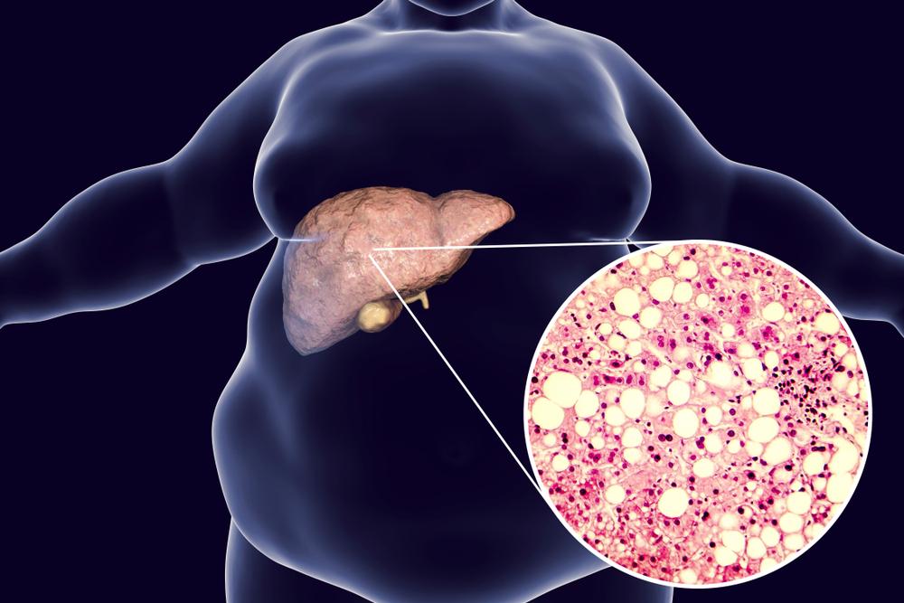 你不知道的脂肪肝与肥胖